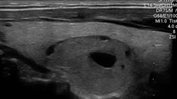 thyroid ultrasound scan showing nodule