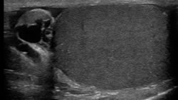 ultrasound scan of testicle